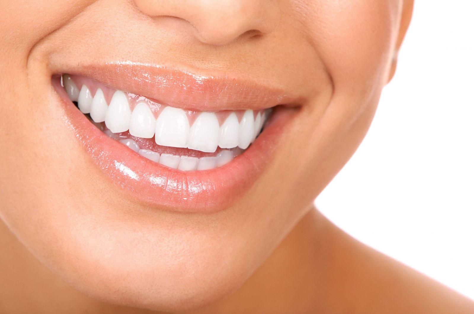 krasivie-zubi