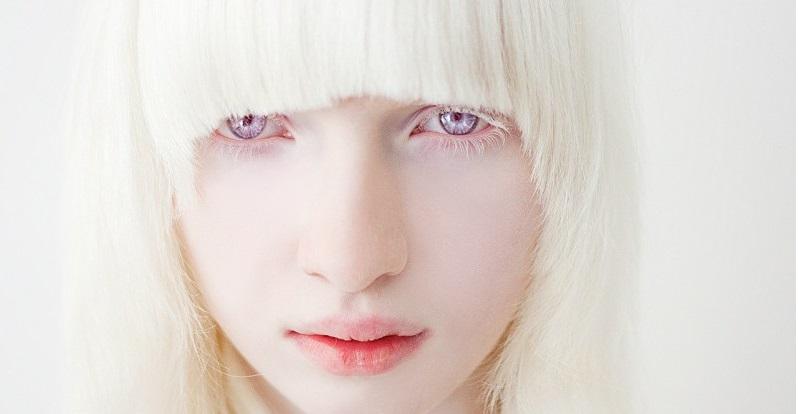 albinizm-cheloveka