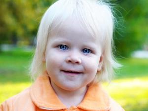 albinizm-lechenie-simptomi