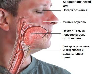anafilakticheskiy-shok-simptomi