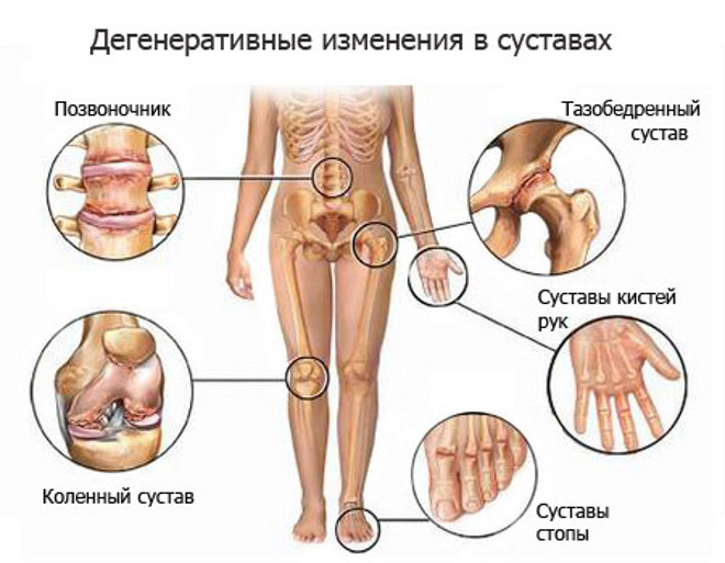 artroz-prichini-bolezni