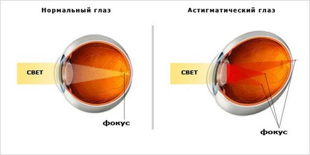 astigmatizm-glaz-simptomi