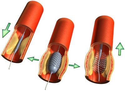 ateroskleroz-lechenie-stentirovaniem