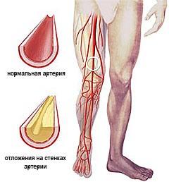 ateroskleroz-lechenie