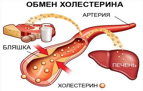 ateroskleroz-simptomi
