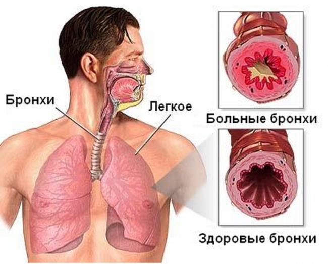 bronhit-simptomi