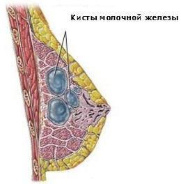 kista-molochnoi-jhelezi-prichini