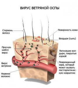 lechenie-opoyasivaushego-lishaya