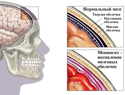 meningit-prichini-zabolevaniya