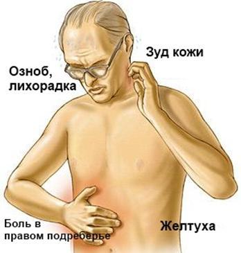 simptomi-holangita