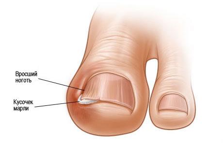 Лечение вросшего ногтя симферополь