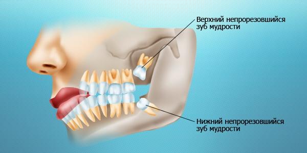 zub-mudrosti-lechenie