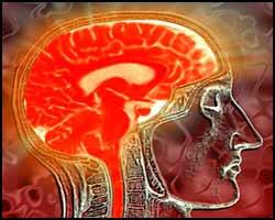 encefalopatiya-simptomi