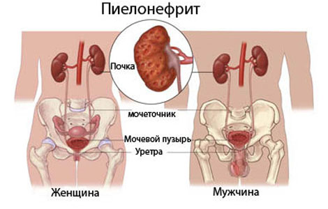 pielonifrit-simptomi