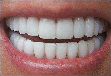 Protezirovanie_zubov_metallokeramikoy1