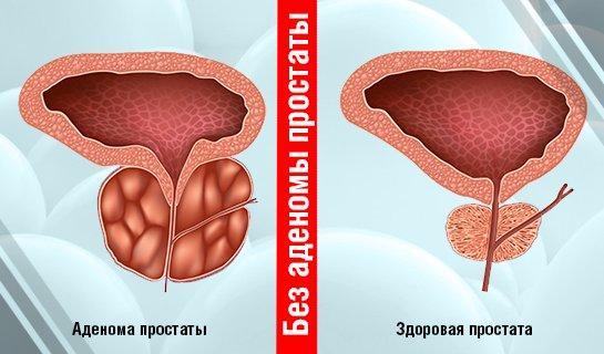 00-Лечение-аденомы-простаты-Русский