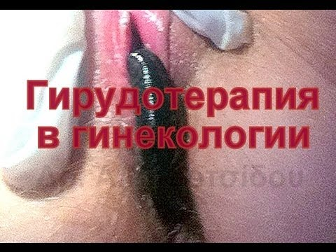 1504096195_hqdefault.jpg