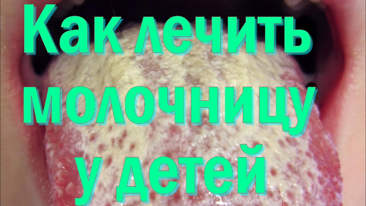 1504727636_maxresdefault.jpg