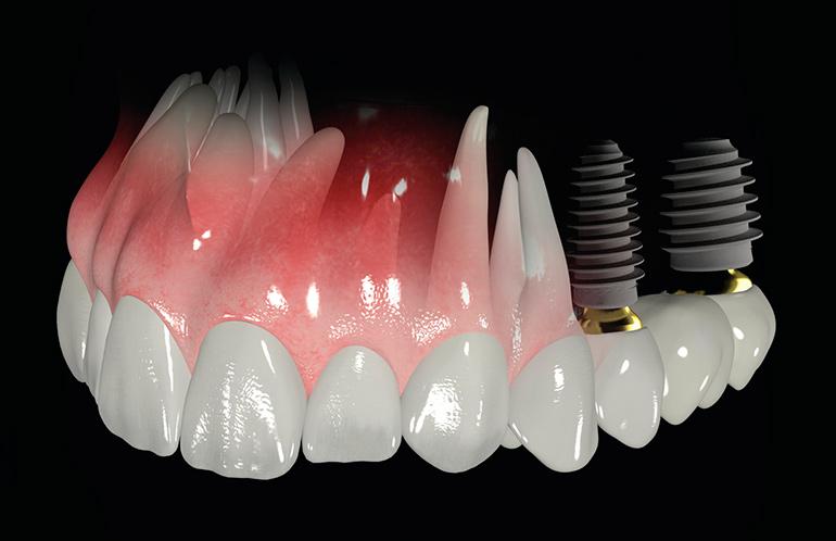 implantacija-zubov-19