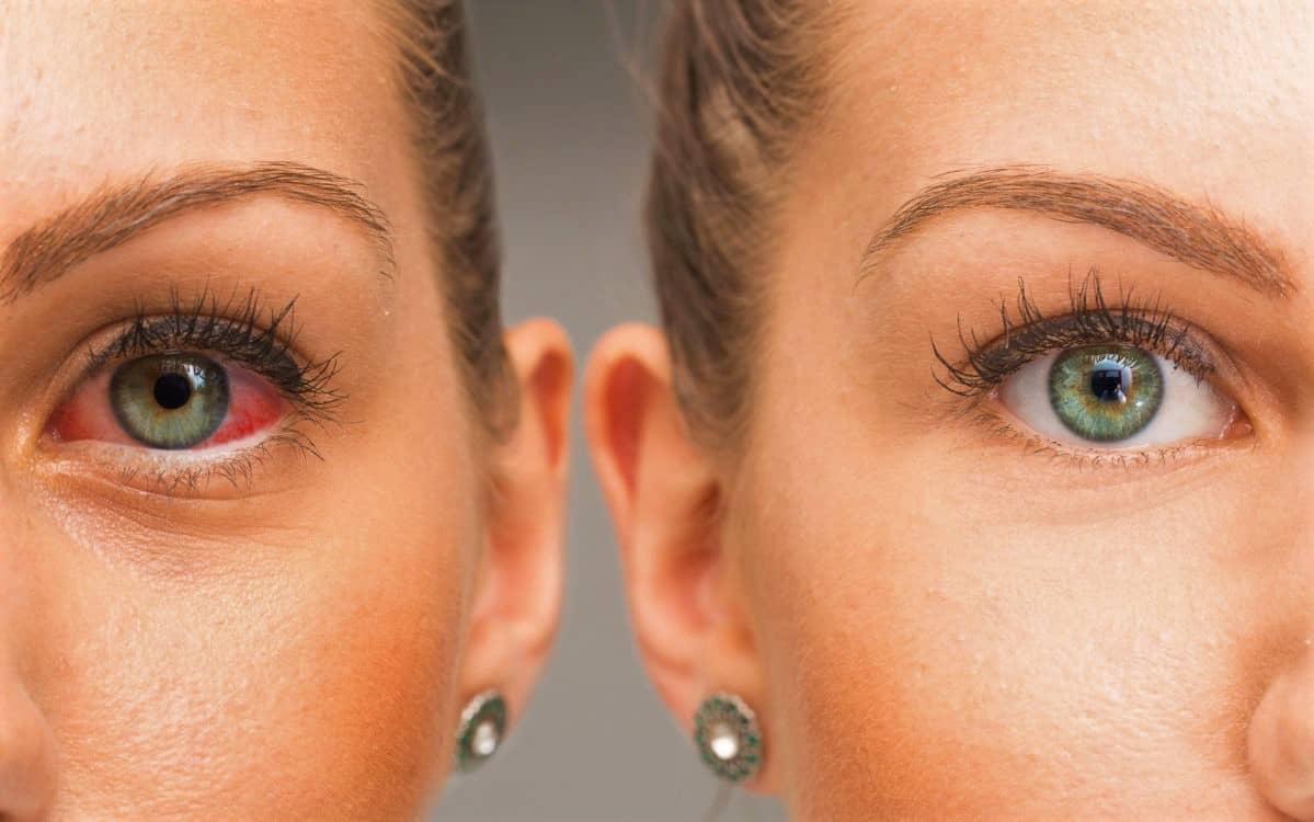 сухість очей (1)