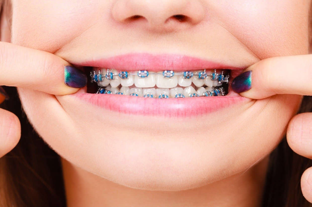 braces-for-teenagers_5bbcacdcc9c42
