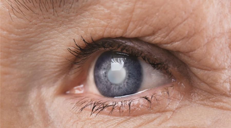 Lechenie-glaukomy